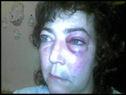 Nothnagel Tanya AttackedTrainRandfonteinJune302009