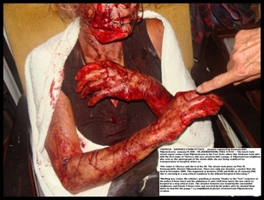 Eksteen Theresa panga attack victim Vermaansdrift Viljoenskroon AH Jan 25 2010