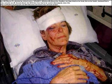 Rhaese Mrs 72_CulrossRdBryanston_4bl_males_attack_Feb122011