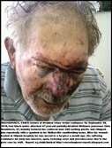 Bronkhorst Chris after vicious attack before  hospitalisation