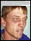 PIETERSE MORNE beaten by cop WELKOM POLICE STATION