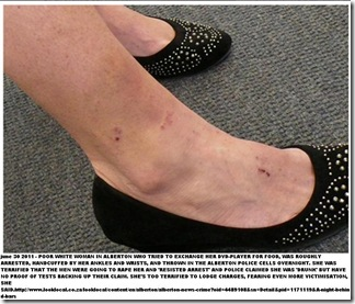 POORWHITE_WOMAN_INJURIES_JAILED_ALBERTON_TRIED_SELL_DVD_FOR_FOOD