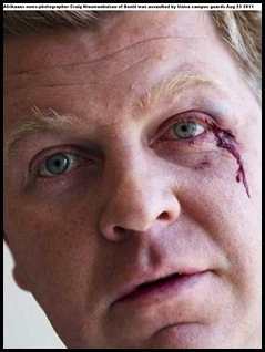 Nieuwenhuizen Craig Beeld Afrikaans photographer Unisa guards battered him Aug232011