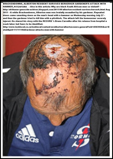 ALBERTON Brackendowns resident survives insane attack by gardener with pitchfork and hammer July272011