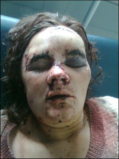 VanZyl Theresa assaulted with a hammer 7 months pregnant Jan 18 2012 baby died after birth TABITA