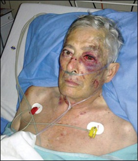 BOTHA WILLEM THREATENED WITH TORCHING WITH WIFE MARCH 8 2012 BRUTALLY BEATEN WITH HAMMER