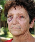 BADENHORST ALET 64 bloodied beaten eyes she and husband Paul 57 ATTACKED AT SKEERPOORT.jpghusband