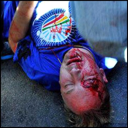 DEMOCRATIC ALLIANCE MARCH MAY 15 2012 MAN INJURED BY BRICK Johannesburg