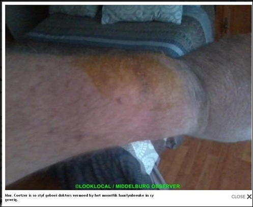 Coetzer attacked by traffic cop badly beaten handcuffed so tight he got hairline cracks in wrist bones MIDDELBURG