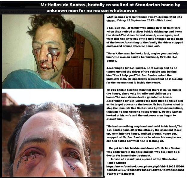DosSantosHeliosStandertonAssaultedByUnknownManForNoReasonSept132013